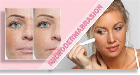 home microdermabrasion reduce wrinkles diy