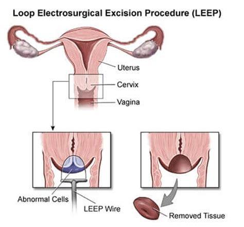 leep procedure nys approved ob/gyn brooklyn heights, nyc