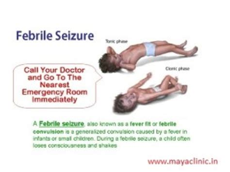 seizures what to do after febrile seizure in children what to do patient education