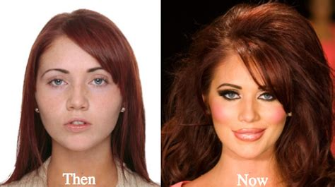 did amy carlson get plastic surgery amy childs plastic surgery before and after photos