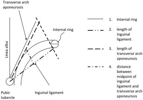 diagram of inguinal canal diagram of the inguinal canal landmarks and points of