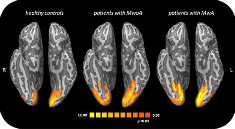 mal di testa sopra la testa mal di testa ecco cosa accade nel cervello diregiovani it