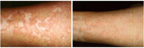 Haevy Metal Detox Rash by Eczema Mysteries