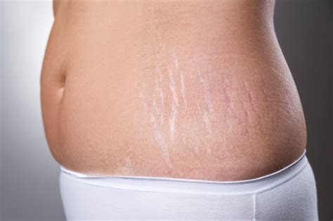 Lopezs Belly Has Gotten All Of A Sudden by 11 Ways To Fade Stretch Marks That Really Work