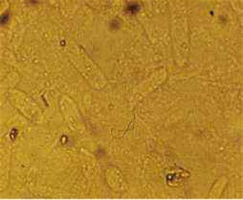 urine sedimento sedimento urinario cilindri veri