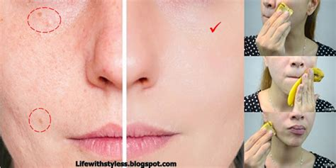 Banana Peel Hairstyle by Use Banana Peel For Acne Removal Within One Week For
