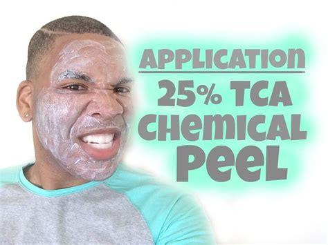 Tca 20 30ml By Azfida Skin Care 1000 ideas about tca peel on tca chemical