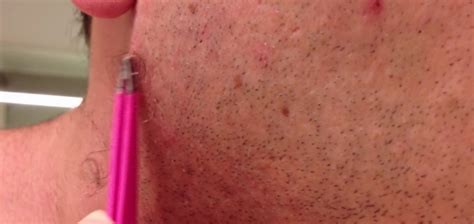 the longest ingrown hair youtube this guy s incredibly long ingrowing hair will gross you
