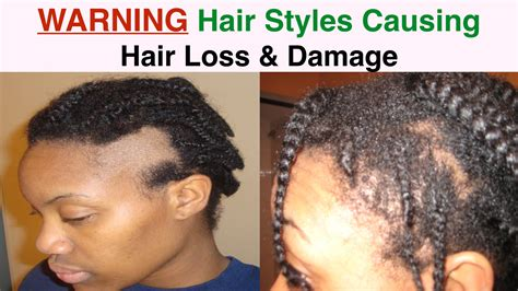 best hairstyles dor traction alopecia hairstyles causing hair loss in women edges nape