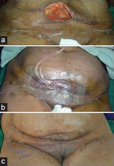second c section incision figure 10 exploiting potency of negative pressure in wound