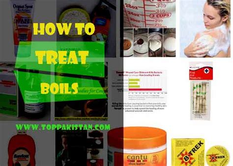 how to treat boils at home how to pop a boil