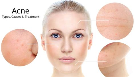 healthy fats and acne best treatment for acne that really works