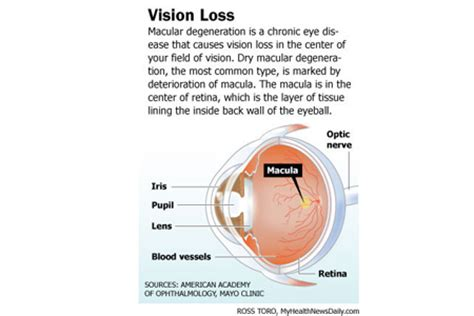 light in peripheral vision mayo clinic macular degeneration symptoms diagnosis and treatments
