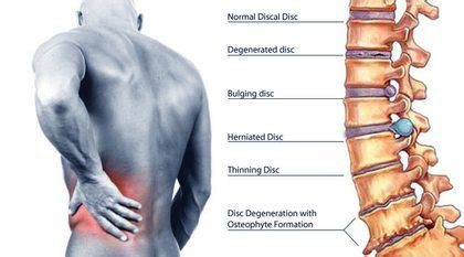 spine pain after c section right side back pain causes and treatment