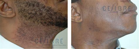 lotus beverly hills skin center laser hair removal los angeles laser hair removal dark skin laser hair