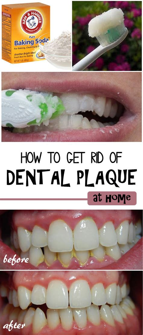 how to remove dental plaque at home lefito