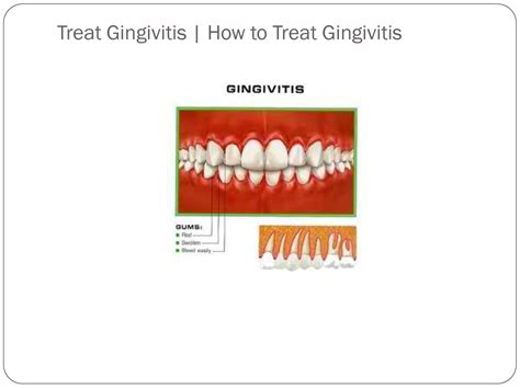 relief the counter gingivitis page 4 information and advice