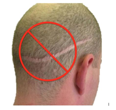 hair style for men haur transplant scar follicular unit extraction with neograft fue bauman