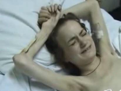 Heroin Detox What To Eat by Russia S Flesh Krokodil An Legend In Uk