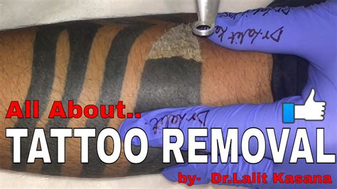tattoo removal how it works removal and how laser removal works