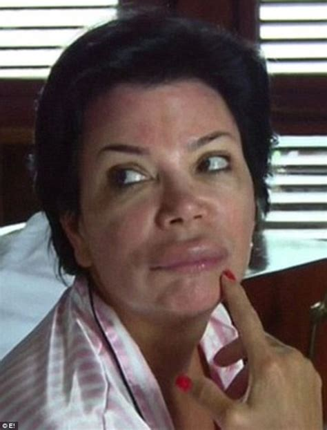 kris jenner what has happened to her face celebgoose kris jenner cancels tv appearance after lip swells up from