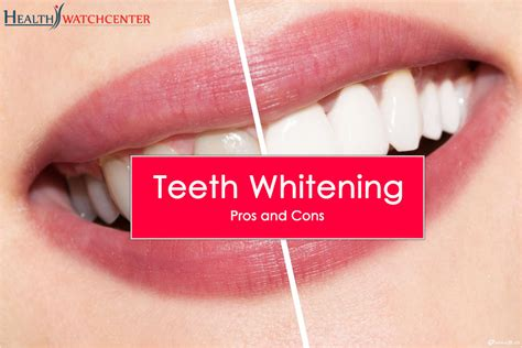 light therapy pros and cons teeth whitening pros and cons