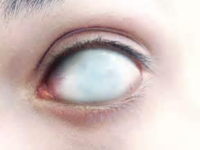 what does blind eye blind eye by bizzar on deviantart