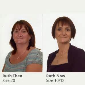 weight loss 08234 weight loss doctor in eht what std will make you lose weight