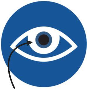 refractive lens exchange | lasik alternative | erik