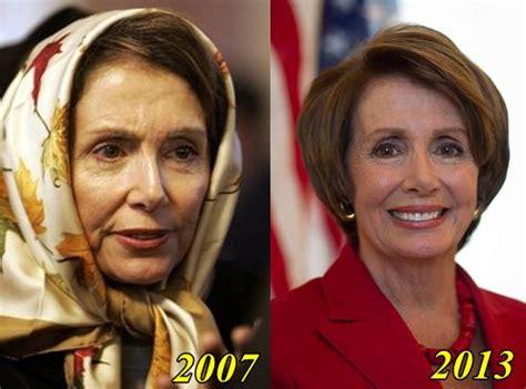 allison rosati plastic surgery nancy travis before and after surgery nancy pelosi