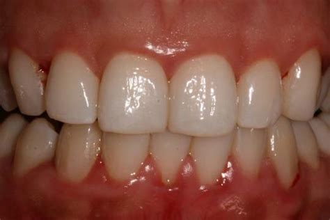 what color should gums be gum disease pictures what do healthy gums look like