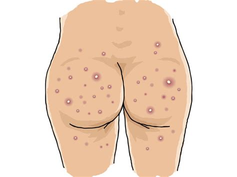 home remedies for acne and boils on the buttocks boldsky