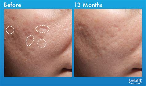 bellafill for results of acne scars bellafill houston tx new york city ny