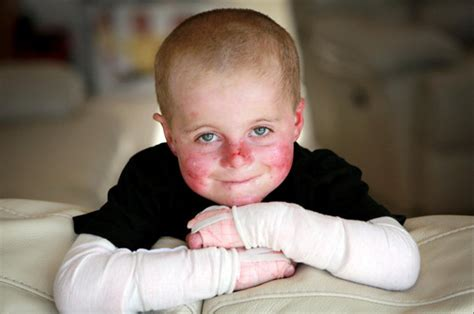 Even The Slightest Touch Helps by Skin Condition Causes Boys Skin To Fall At