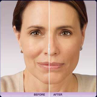 juvederm model juvederm 174 treatments in st louis mo at aurora medical spa