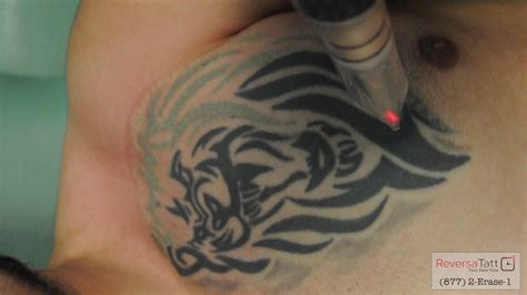 scalpel tattoo removal 100 removal in new orleans new orleans skin