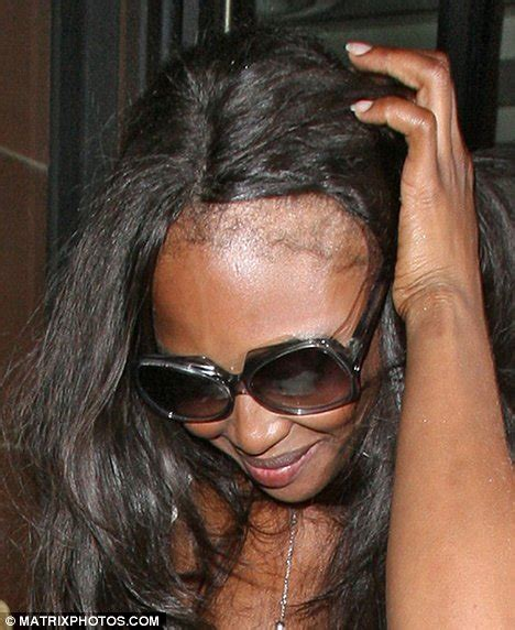hair pieces for women with reseding hairlines hairline help black girl with long hair