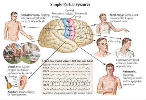 seizure symptoms temporal lobe seizure symptoms diagnosis treatment