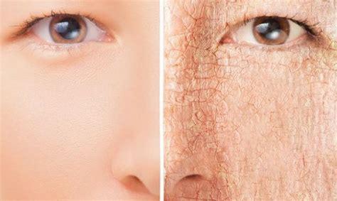Tiga Langkah Mengatasi Jerawat 3 langkah mudah mengatasi kulit kering dan bersisik
