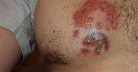 infected tattoo on facebook diy tattoo infection parasite parasite pinterest