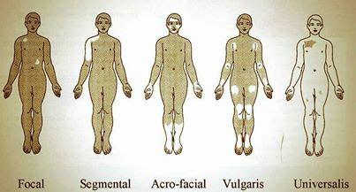 le vitiligo: quand la peau perd son pigment
