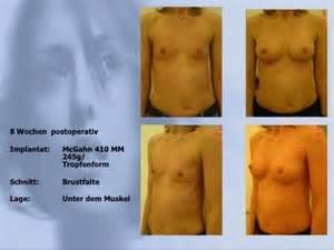 brustimplantate vorher nachher fotos beispiel dr med a wolter z 252 rich berlin
