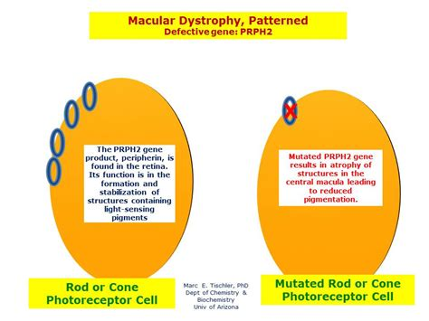 pattern dystrophy gene macular dystrophy patterned 1 hereditary ocular diseases