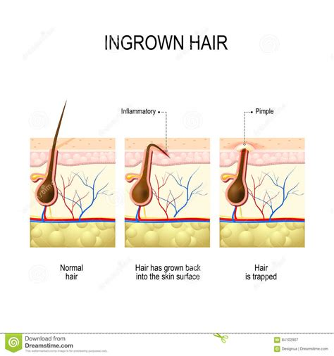ingrown hair diagram diagram of a tuba diagram of a harp elsavadorla