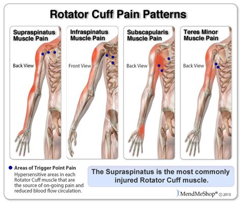 torn rotator cuff diagram shoulder and common shoulder problems aaos autos post