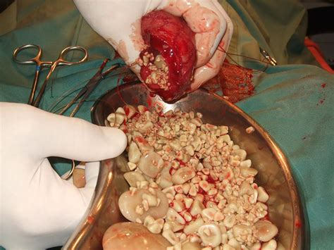 bladder stones dogs bhvg uroliths in a presented in distress straining to pass lots of small