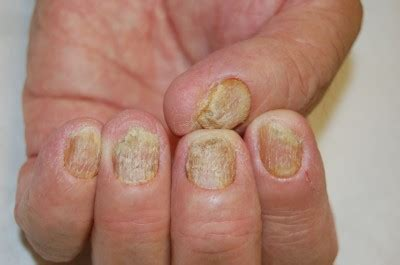 [full text] optimal management of nail disease in patients