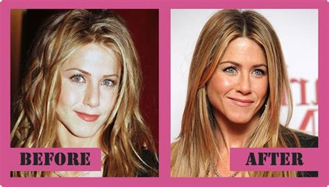 Did Aniston Get Implants by Aniston Plastic Surgery Before And After