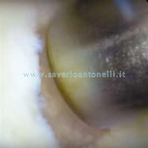condilo femorale interno trapianto di pasta osteocondrale saverio antonelli
