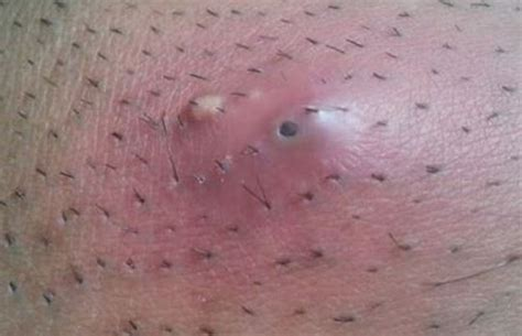 photos of shaved pubic when it comes to removing pubic hair women are turning to